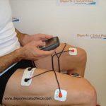 Condromalacia rotuliana y electroestimulación