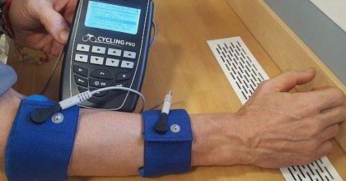 electroestimulacion epicondilitis y microcorriente