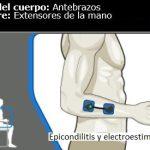 Epicondilitis y electroestimulación