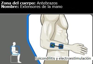 Epicondilitis y tratamiento con electroestimulación