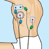 Entrenamiento con electroestimulacion para natacion. Dorsal
