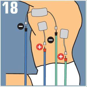 compex dorsales colocación de electrodos