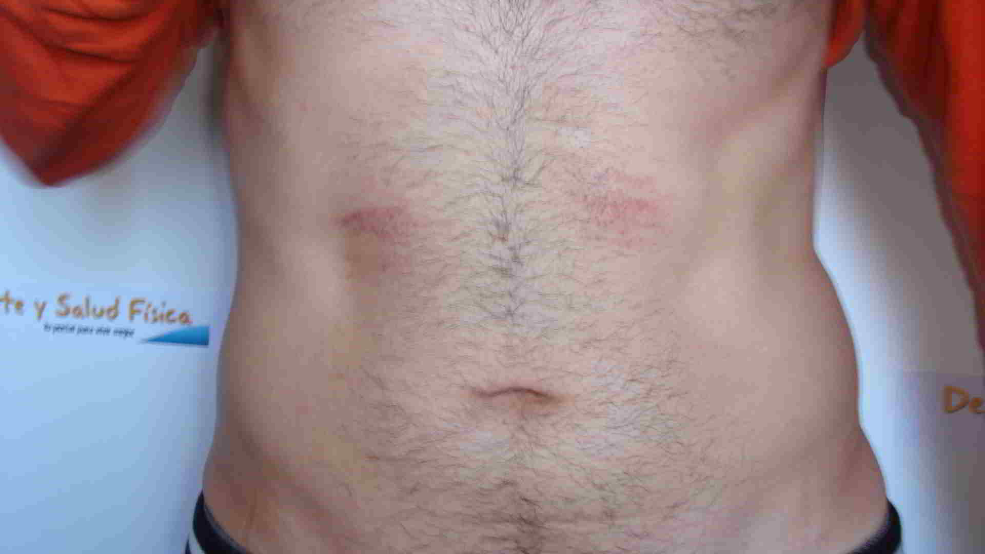 Algunas veces la electroestimulacion tiene contraindicaciones y provoca heridas por no utilizarse bien