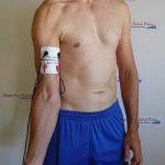 Gana masa muscular tras una lesión