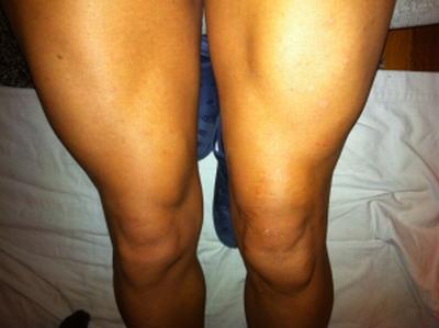 hipertrofia muscular con electroestimulacion. Elimina tu atrofia mucular