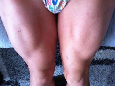 hipertrofia muscular con electroestimulacion mes 2. elimina la atrofia muscular