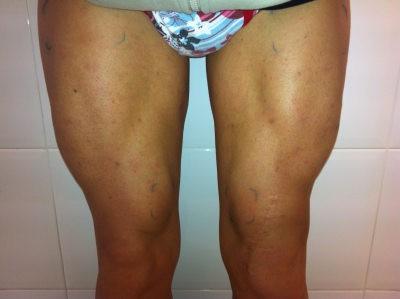 hipertrofia muscular mes 4. elimina la atrofia muscular