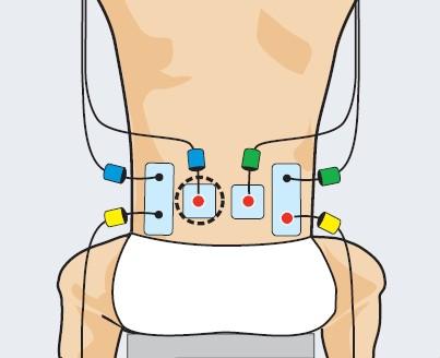 entrenamiento de padel con electroestimulación. Lumbares