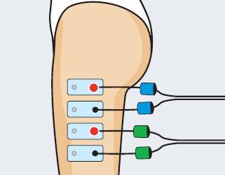 cintilla iliotibial dolor. colocacion de electrodos