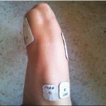 ¿Te pica la piel después de usar tu electroestimulador? Parte 2