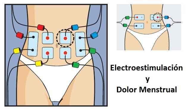 electroestimulacion y dolor menstrual