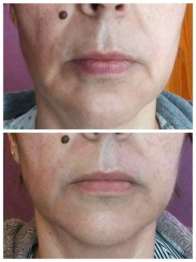 electroestimulacion para la cara