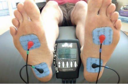 tratamiento electroestimulación fascitis plantar