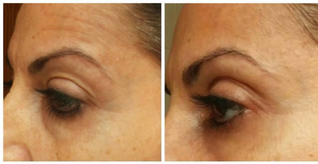 electroestimulación para la cara. Microcorriente facial
