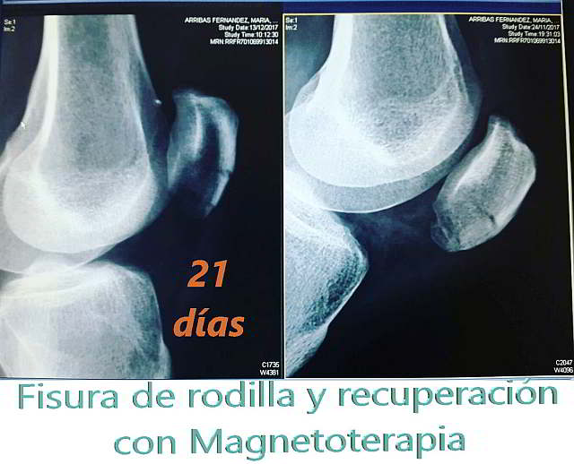 Magnetoterapia en fisura de rodilla. Recuperación