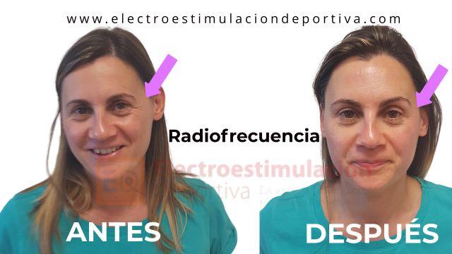 Radiofrecuencia antes y después